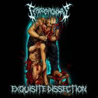 Teratocarcinomas-Exquisite Dissection