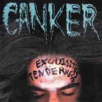 Canker-Exquisites Tenderness