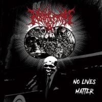 Nephrectomy-No Lives Matter